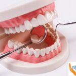 Comfortable tooth extraction and best dental implants just a call away